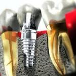 Single dental Implant | thedentalimplantcenterlv.com